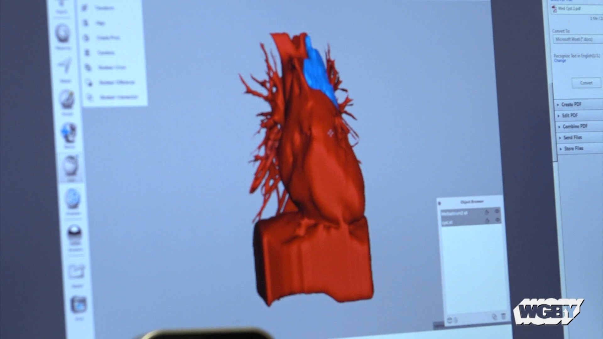 3D Printing Aids Surgeons at Baystate Medical Center
